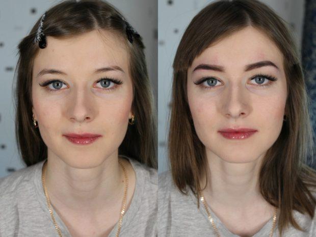 Биотатуаж до и после